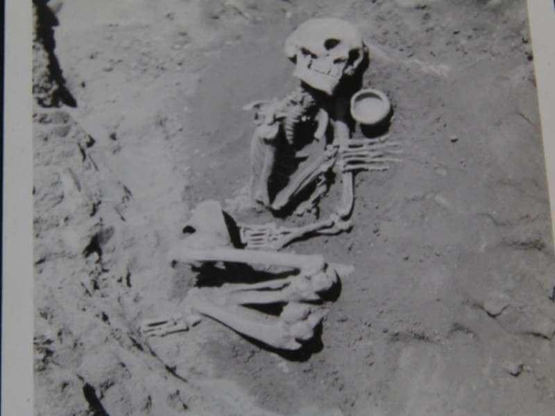 6 Fingered Skeleton