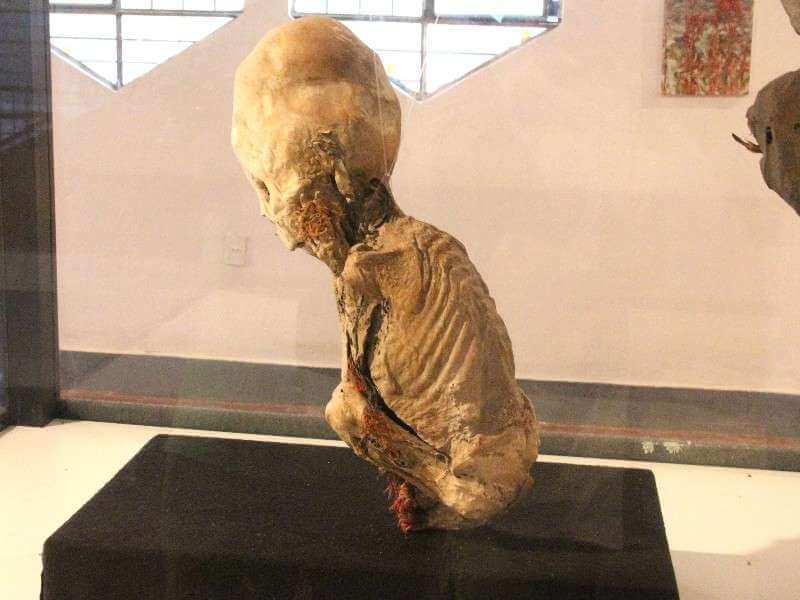 Huatara Child Elongated Skull