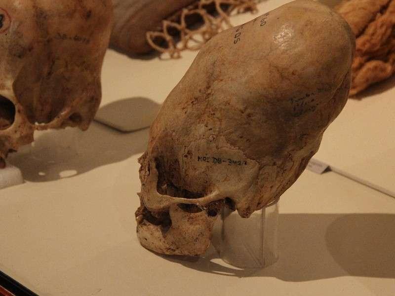 Ica Museum Chognos Skull